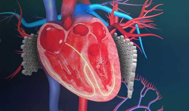 Heart Muscle Degeneration